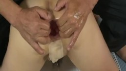 Extreme anal fisting and pumping mutilation