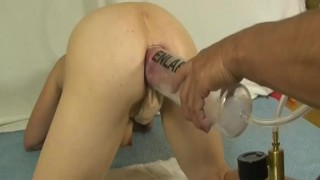 Extreme anal fist fucking and vacuum swelling destruction