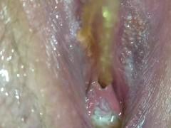 Close up of pee hole 13