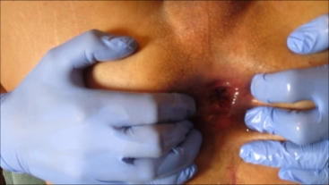 Sadee 1st Anal Rosebud Prolapsed Wide Open Closeup Extreme Anal Stretching