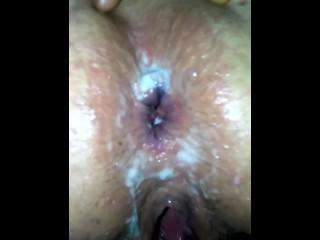 Amputee Porn Domain No 05 10 2018 Fuckmeats Anal Creampie 3 Loads In Er Ass