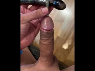 Van Buren prostate sounding