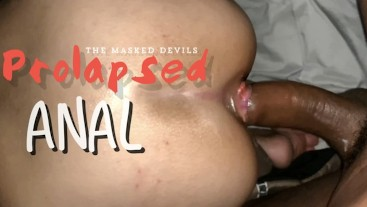 The Masked Devils: Fucking a Prolapsed Ass w/ Hemorrhoids!