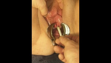 Extreme Pussy Torture Speculum Stretched, Burnt With Cigarette plus nettles