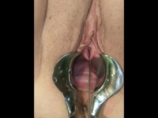 Female Urethral Stretching and Squirting Extreme BDSM Medical Play Torture