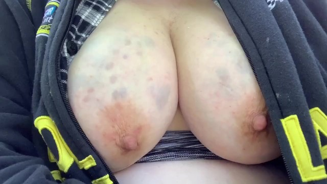Torture abuse fat bbw fucking Exposing fat abused tits as cars pass self-inflicted bruises