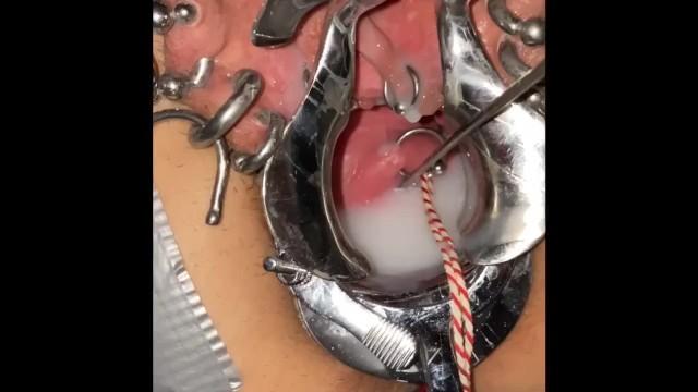 Asian gential piercing - Extreme cervix sounding