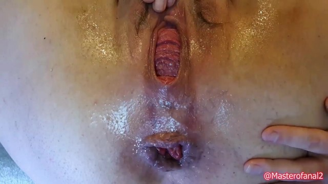 Creating an anal rosebud Preview - extreme anal and prolapse