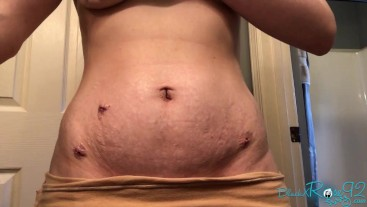 Belly Stretch Marks and Scars Transformation